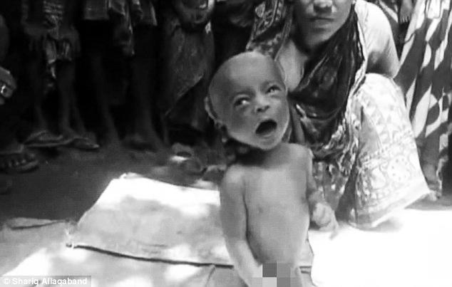 Bayi dipaksa berjalan untuk sembuhkan demam panas