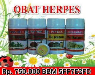 Obat Herpes Termanjur
