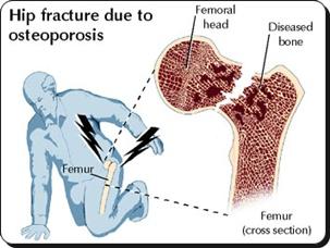 Cara Mengobati Osteoporosis Secara Herbal