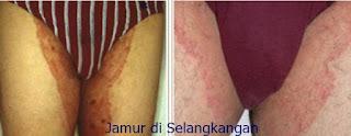 ciri ciri gatal jamur kulit parah di kulit selangkangan dan kemaluan