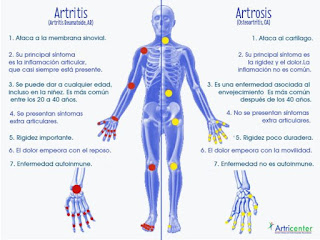 what does arthritis in toes feel like