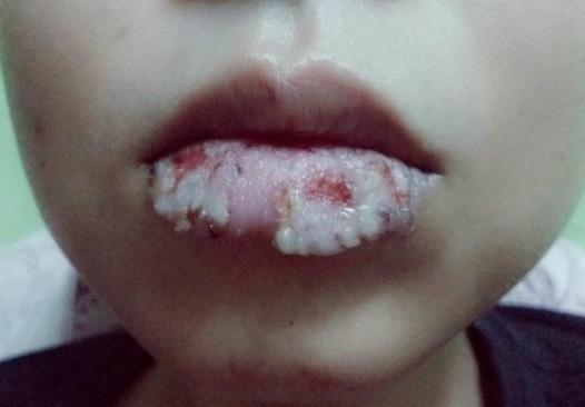 Akibat Pakai Lipstick Murah