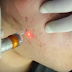 How To Eliminate Acne Scars with Lasers and the Benefits