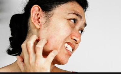Bagaimana Cara Menghilangkan Biang Keringat di Wajah, Muka, Jidat dan Hidung dengan Salep dan Alami