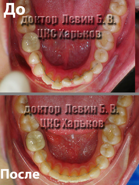 Форма нижнего зубного ряда до и после лечения.