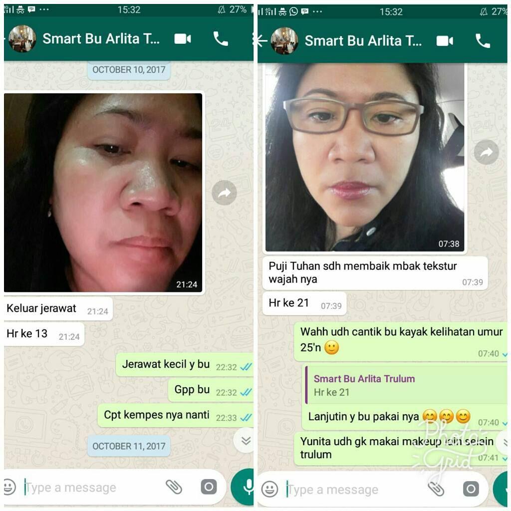 Klinik Kecantikan Trulum Serum Di Nginden Jangkungan, Kota Surabaya WA: 08112338376