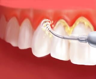 Lấy cao răng để làm sạch mảng bám trên răng bị ố vàng