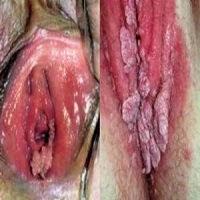 Infeksi Penyakit Kutil Kelamin Wanita