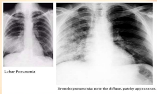 https://konicadrivers.blogspot.com/2017/10/bronkopneumonia.html