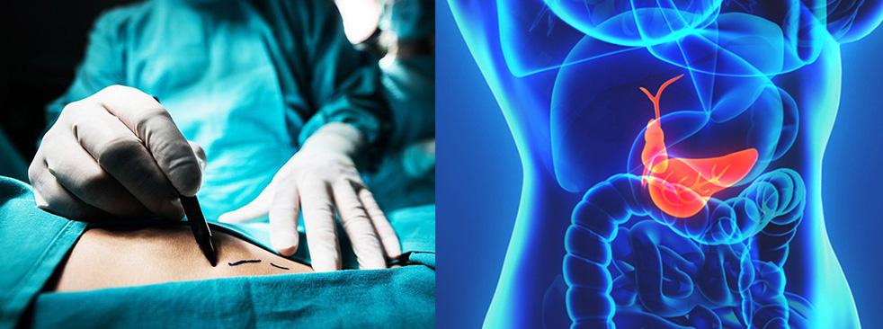 Perdida de peso operacion vesicula biliar