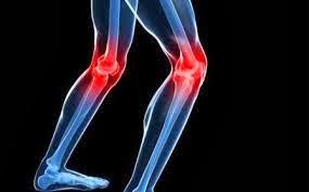Cara Mengatasi Radang Sendi Lutut