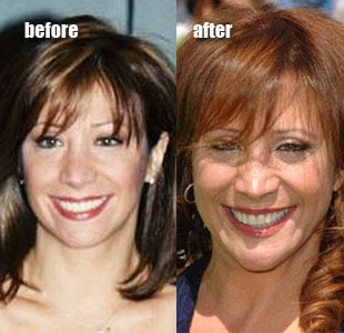 Cheri Oteri Plastic Surgery Before And After Facelift And