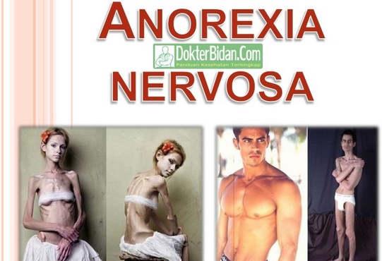Anoreksia Nervosa - Gejala Penyebab Komplikasi dan Cara Pengobatanya
