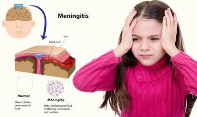Jenis Bakteri, Virus dan Infeksi Penyebab Meningitis