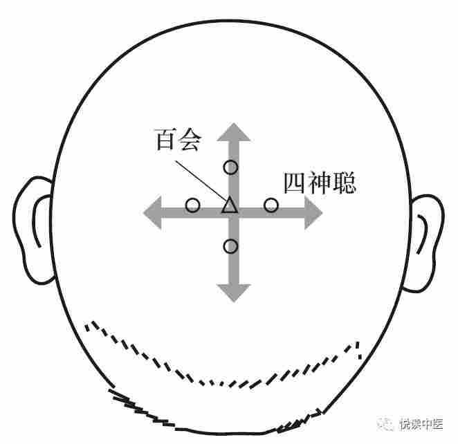 四神聰穴位置 | 四神聰穴痛 - 穴道按摩與穴位引導經絡功效圖解 - 穴道經絡引導