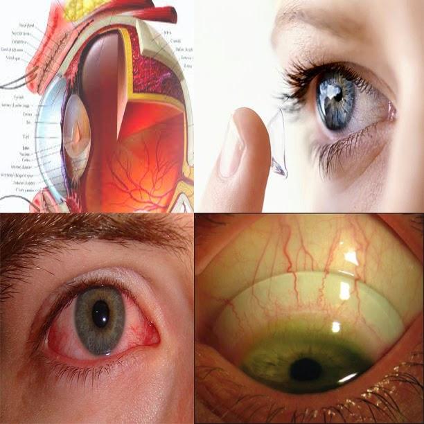 Image result for iritasi mata karena softlens