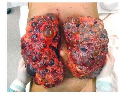 12 EARLY SYMPTOMS OF KIDNEY DISEASE ~ DIAMONDZ REVOLUTION