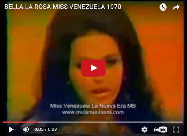 La Miss Venezuela gemela, que no conocías