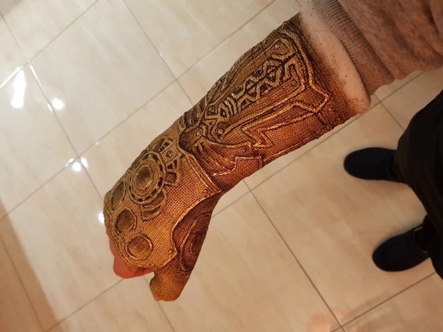 After This Guy Broke His Wrist, He Decided To Transform His Cast Into The Infinity Gauntlet Of Thanos