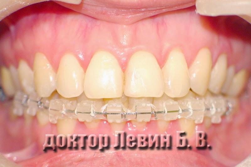 Фото зубов через двенадцать месяцев после начала лечения керамическим брекетами, брекеты оставлены только на нижних зубах.