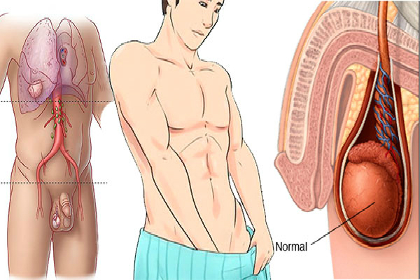 Symptoms Of Testicular Cancer Not To Be Overlooked