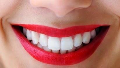 Tips Cara Cepat dan Alami Membuat Gigi Tampak Putih dan Sehat  b8b375bd42