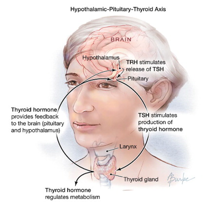 Foods To Avoid With Subclinical Hypothyroidism