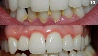 تخلص من أصفرار الأسنان بطرق طبيعية