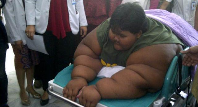 Ini Cara Bocah Obesitas Asal Karawang Lakukan Salat