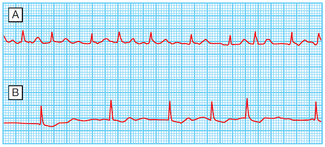 ECG of atrial fibrillation