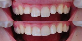 Trám răng có bền không bằng vật liệu composite ?