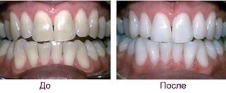 Отбеливающие процедуры для зубов. Зубы до и после