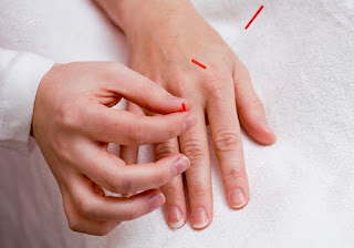 Chinese Medicine Therapy Acupuncture Health and Well Being Sports Injuries