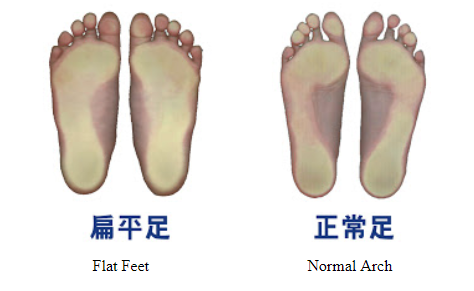 6ac5968f26 Flatfeet is a condition when children's feet do not develop arches when  they grow which may be treated by arch support custom made insoles in shoes.