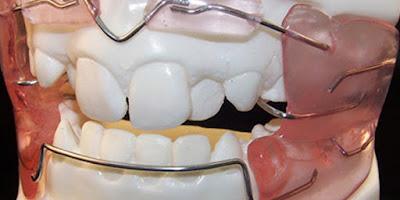 ¿Qué diferencia hay entre ortodoncia y ortopedia maxilar?