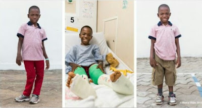 Boy With Windswept Legs Overjoyed After Undergoing Surgery To Correct Deformity