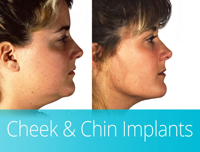 chin cheek augmentation