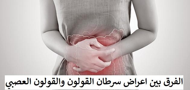 الفرق بين اعراض سرطان القولون والقولون العصبي
