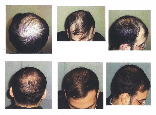 Nachwachsen Der Haare Nachwachsen Der Haare Behandlung Für