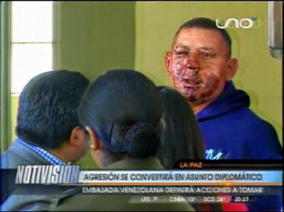 Denuncian brutal agresión a diplomático venezolano