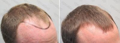 Hasil Pemakaian Kirkland untuk rambut botak dalam 1 bulan