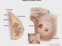 """news"" NEW MEDICINE BREAST CANCER PATIENTS AGE"