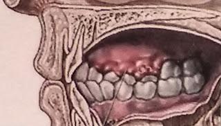 Penyakit Gusi dan Mulut