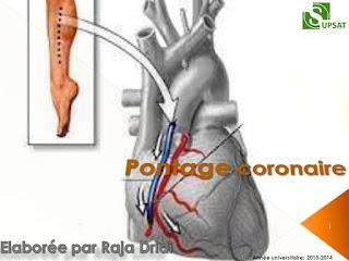 Pontage coronaire .pdf