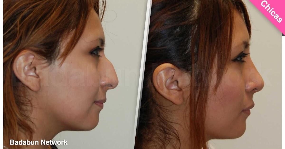 nariz corregir remedios botox inyecciones belleza medicina