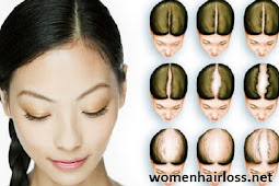What Girls Can Do About Hair-loss