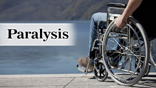 Ayurvedic Treatment for Paralysis