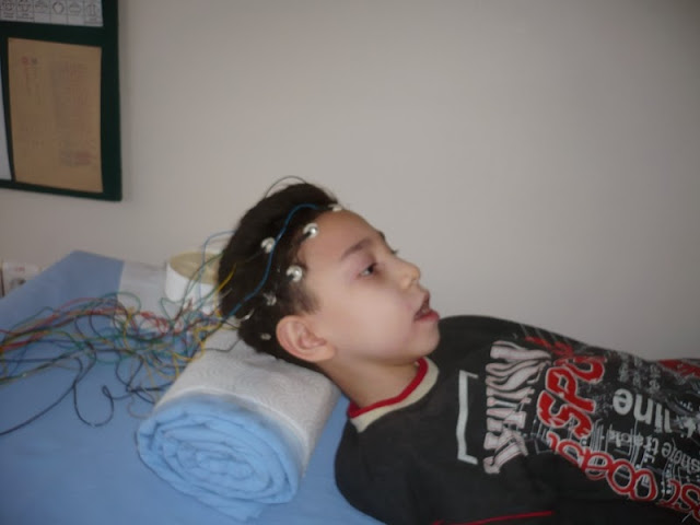 EEG (Elektroensefalografi) çekiminden bir kare