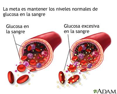 Síntomas Glucosa elevada