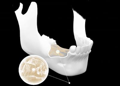 trồng răng cấm bằng phương pháp cấy ghép Implant -5